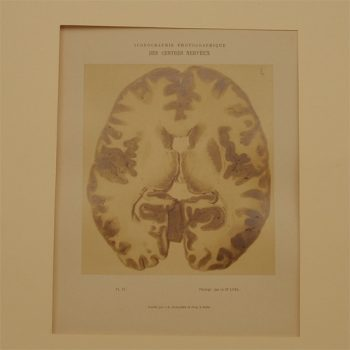 Luys Iconographie of brains - van Leest Antiques (1)