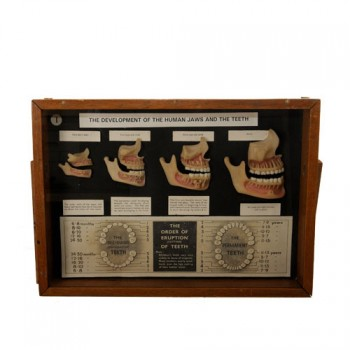 41Wax teeth development  models- van Leest ANtiques (1)