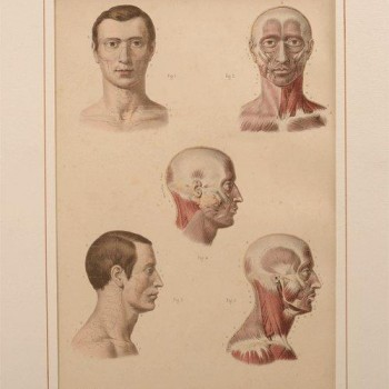 134Fau medical antique print - van Leest Antiques 320222 t