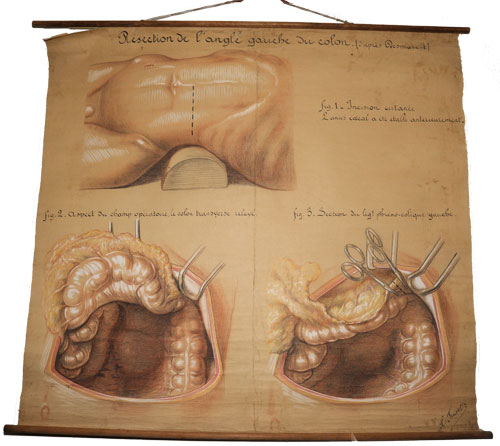 Anatomical chart by  J. Frantz - van Leest Antiques  (1)
