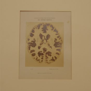 Luys Iconographie of brains - van Leest Antiques (4)