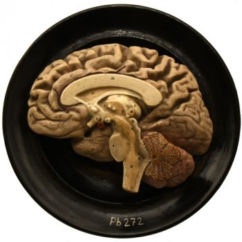 G. Steger - Schkeuditz sagital Brain model - van Leest Antiques (1)