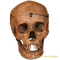 Medical skull - van Leest Antiques (1)