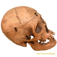 Medical skull - van Leest Antiques (4)
