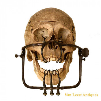 Staphylorrhaphy Palatorrhaphy Surgery -  van Leest Antiques (1)