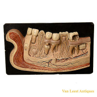 Anatomical Bock-steger jaw model, denture with 8 teeth, plaster - van Leest Antiques (2)
